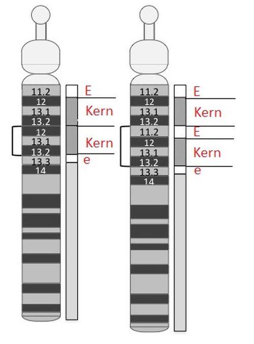 15q Duplikationen
