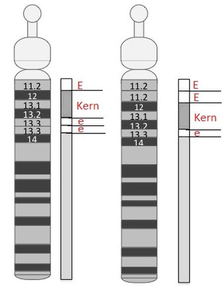15q-microduplication